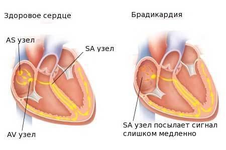 Синусовая брадикардия повышенное давление