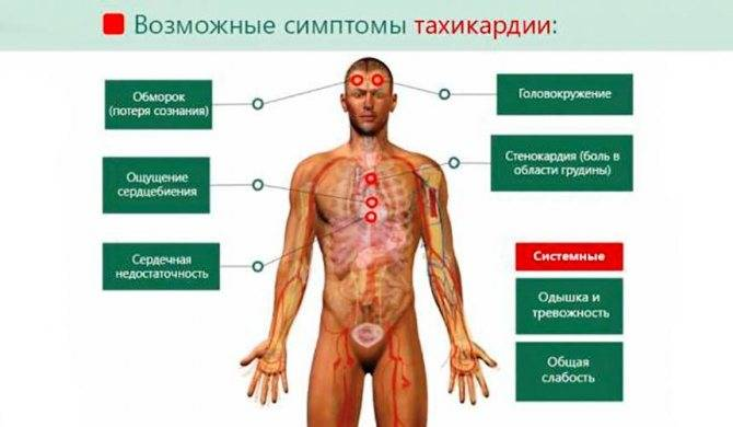 Тахикардия - симптомы и лечение в домашних условиях. причины возникновения тахикардии и чем купировать приступ