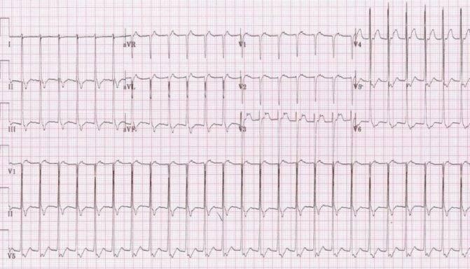 Тахикардия – симптомы, причины возникновения. что такое тахикардия сердца, чем опасна?
