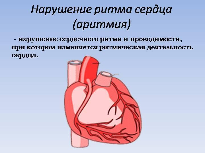 Желудочковая аритмия: виды, проявления, лечение, прогноз