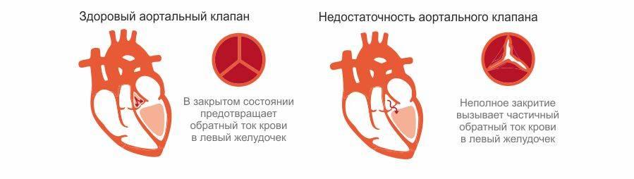 Насколько опасна недостаточность клапанов сердца