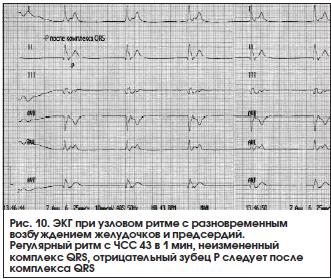 Синусовая брадикардия сердца – что это такое? причины заболевания, симптомы и методы лечения