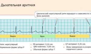 Дыхательная аритмия