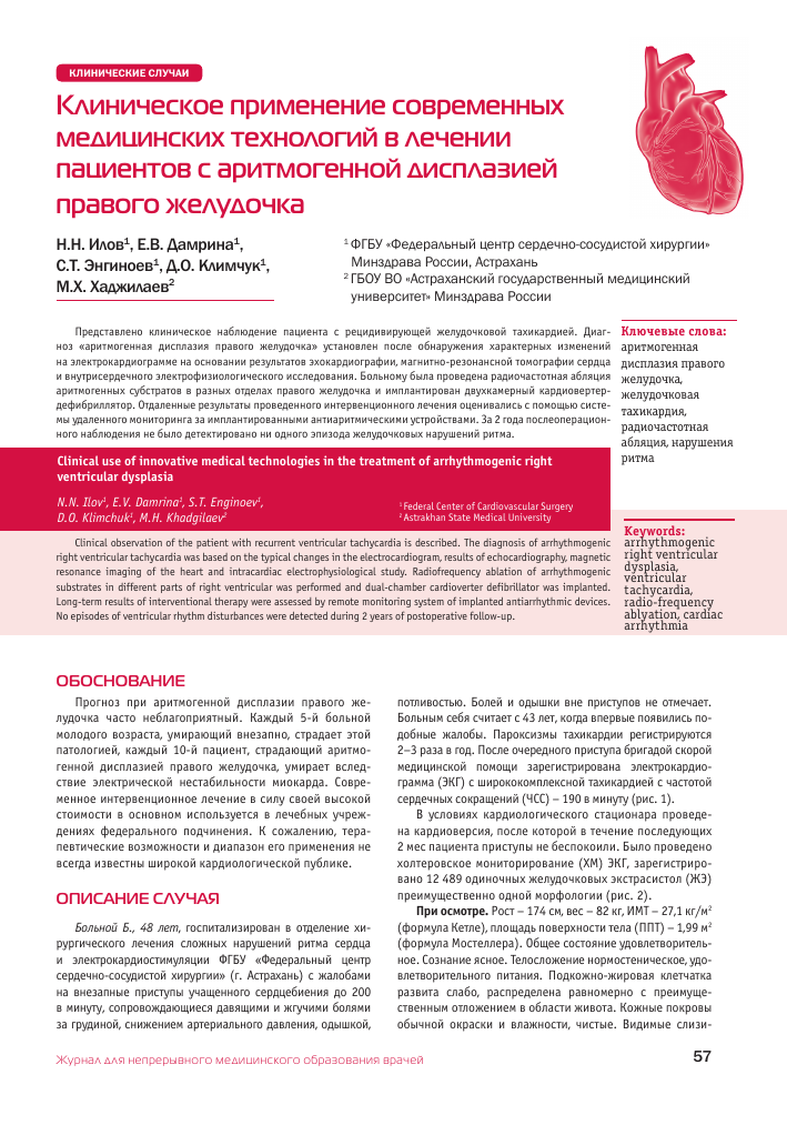 Аритмогенная дисплазия правого желудочка — википедия переиздание // wiki 2