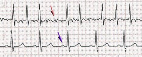 Синусовая аритмия сердца: что это, симптомы, лечение, чем опасна