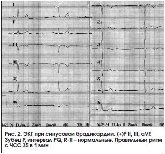 Синусовая брадикардия сердца. что это такое умеренная, выраженная, эос вертикальная, легкая, как лечить. как выглядит на экг. народные средства, препараты