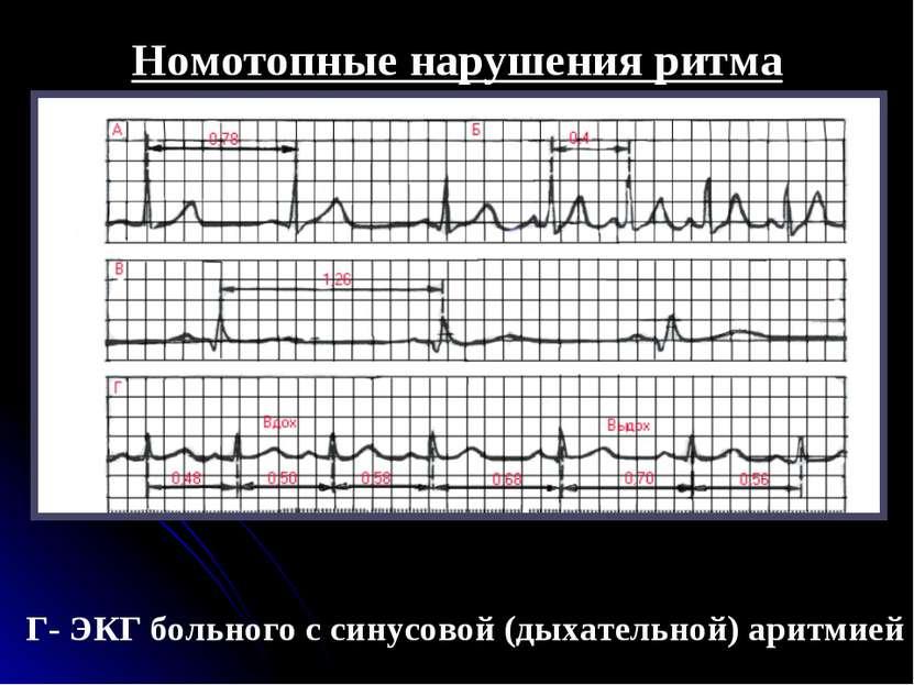 Нарушения ритма сердца классификация