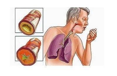 Бронхит тахикардия
