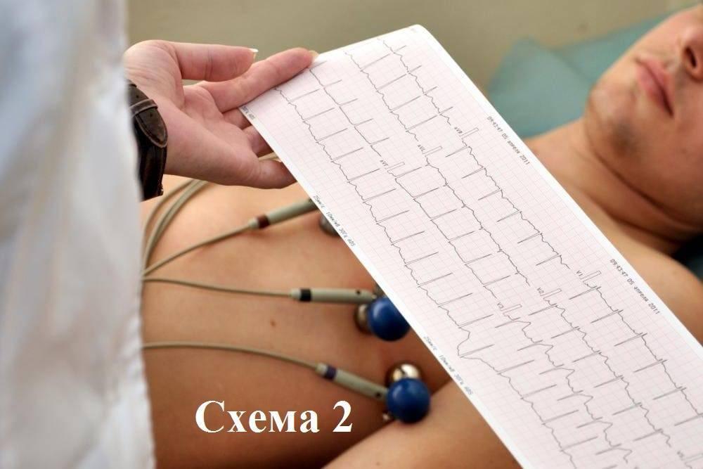Прижигание сердца при аритмии: отзывы