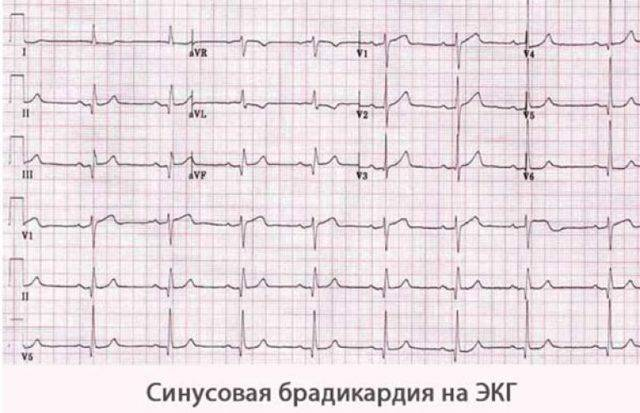 Брадикардия. причины, симптомы, признаки, диагностика и лечение патологии