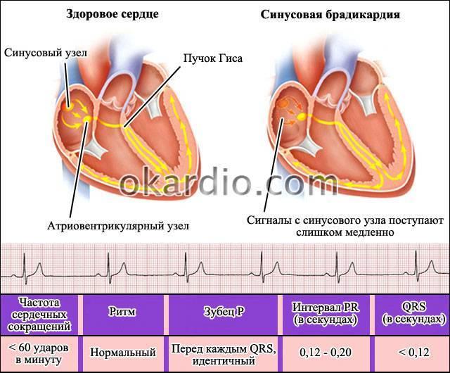 Брадикардия сердца у ребенка: первые признаки и основные симптомы, лечение и профилактика патологии