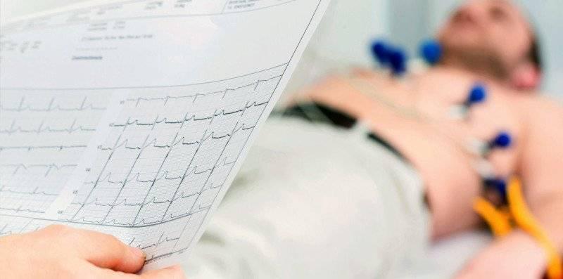 Пароксизмальная тахикардия: этиология, симптомы и лечение