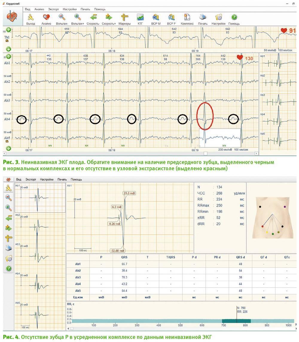 Тахикардия плода и внутриутробная гипоксия - внутриутробная тахикардия плода - запись пользователя луиза (aviralu) в дневнике - babyblog.ru