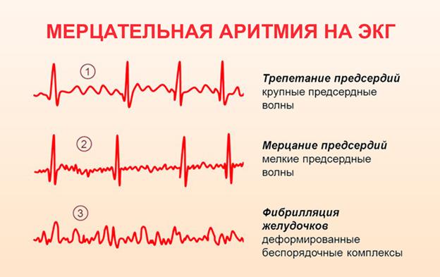 Синдром аритмии