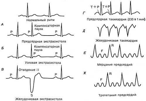 Классификация желудочковых экстрасистол по лауну