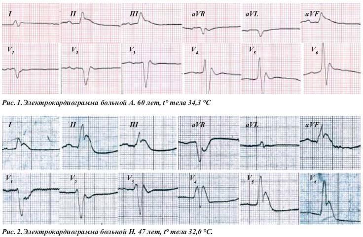 Синдром бругада: экг признаки, диагностика, лечение | кардио болезни