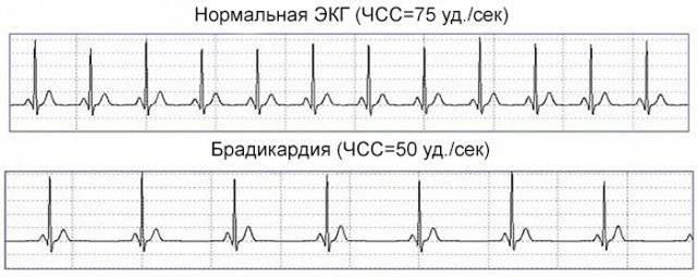 Чем опасен низкий пульс у человека