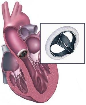Аортальная недостаточность 1-4 степени: причины и симптомы, лечение и прогноз