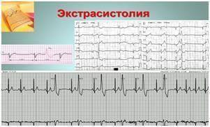 Желудочные экстрасистолы сердца