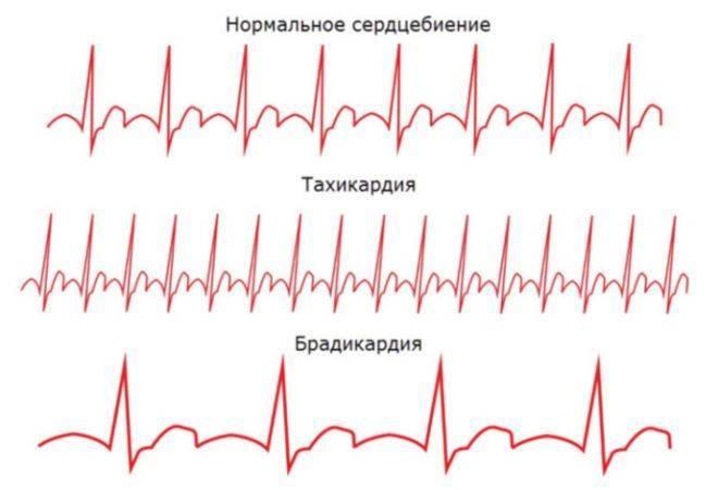 Брадикардия сердца — что это такое и как лечить народными средствами