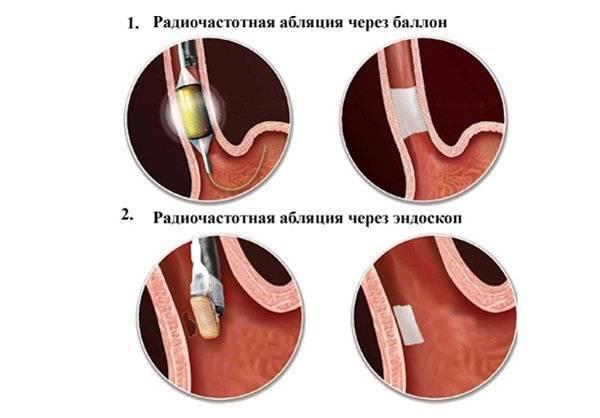 Прижигание сердца при аритмии: ход операции, особенности и последствия
