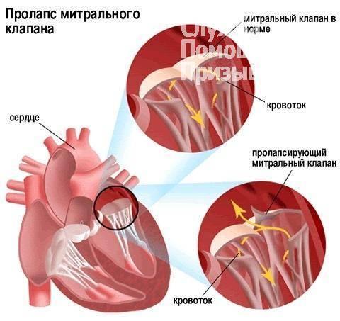 Синусовая аритмия сердца берут ли в армию