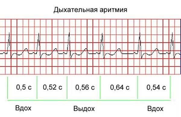 Синусовая аритмия у ребенка