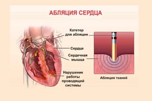 Операция по прижиганию сердца при аритмии