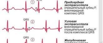 Экстрасистолы при болезнях позвоночника
