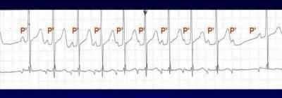 Тахикардия - как лечить тахикардию сердца, симптомы и разновидности