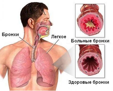 Тахикардия после простуды — cardio