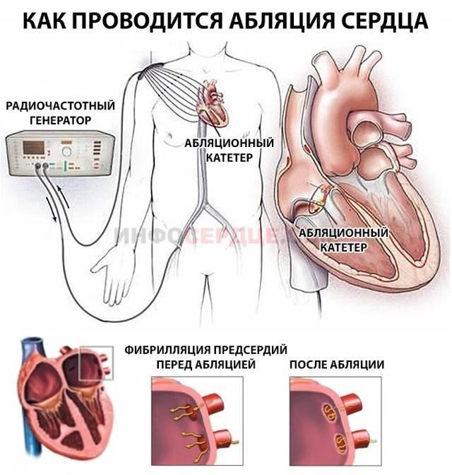 Желудочковая экстрасистолия. что это такое, лечение, чем опасна, причины, экг, препараты