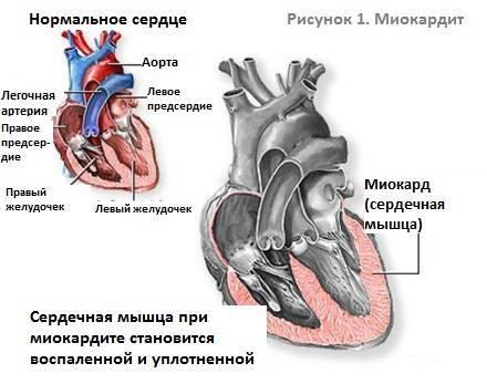Аритмия сердца: симптомы и лечение