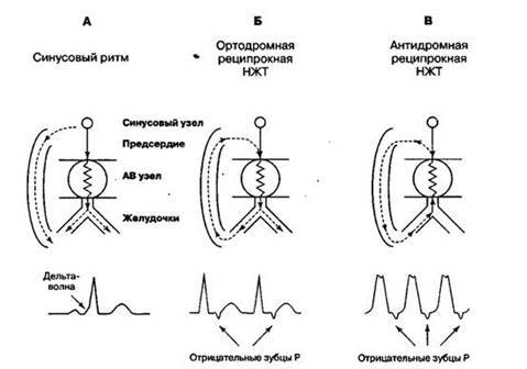 Тесты нмо/атриовентрикулярные тахикардии