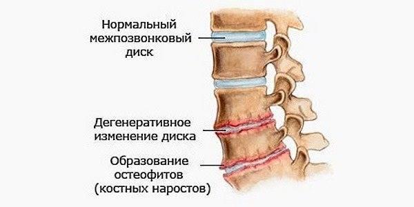 Тахикардия при остеохондрозе: причины, симптомы, лечение и профилактика