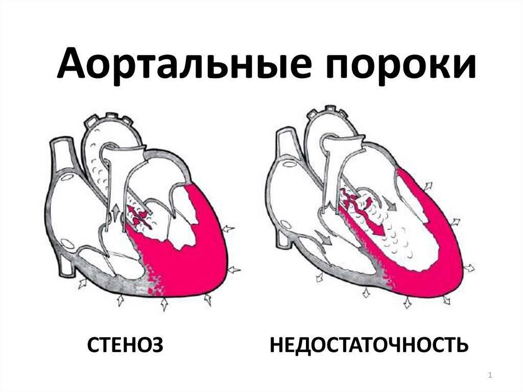 Недостаточность аортального клапана: 1,2,3 степени, лечение, симптомы и причины — симптомы
