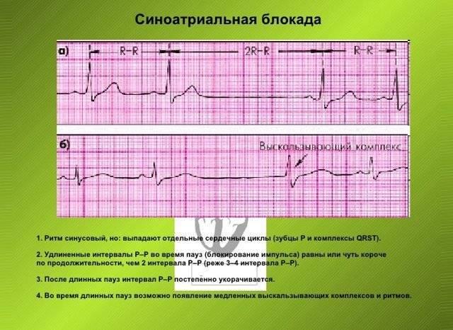 Синусовый ритм сердца: расшифровка кардиограммы