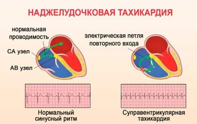Что провоцирует высокий пульс при нормальном давлении