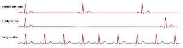 Синусовая аритмия сердца — чем опасна, что это такое, лечение, препараты, что делать?