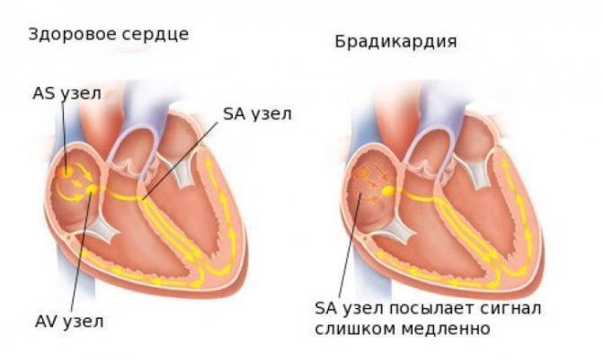 Препараты для лечения брадикардии