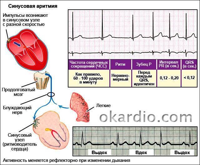 Причины, симптомы и лечение аритмии