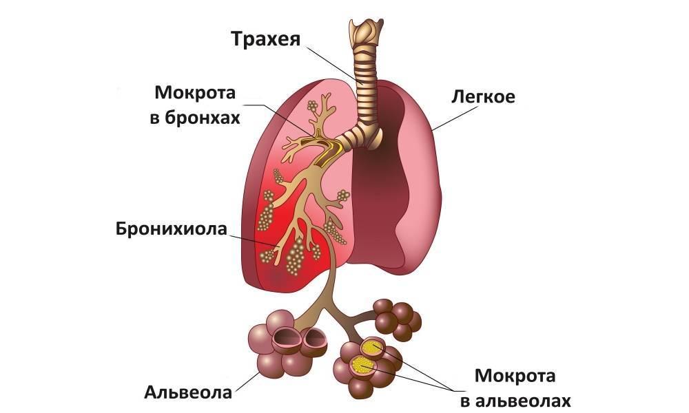 Тахикардия и орви