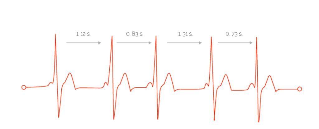 Вариабельность сердечного ритма норма