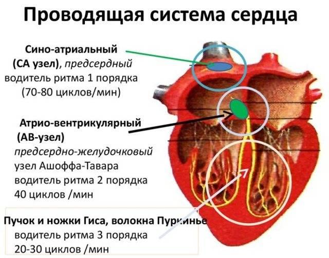 Приступ аритмии как снять
