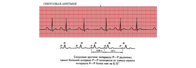 Синусовая аритмия сердца лечение