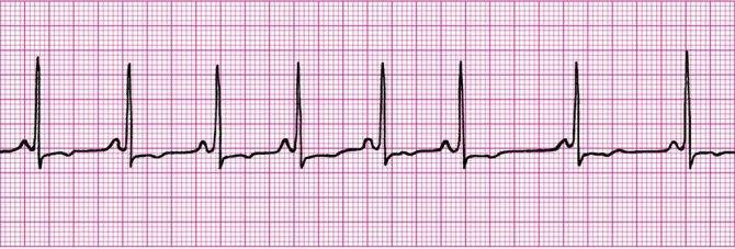 Аритмии в подростковом возрасте: как определить, чем лечить, какие прогнозы?