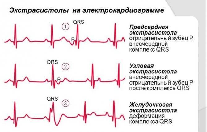 Диагноз экстрасистолия: лечение, препараты для нормализации работы сердца