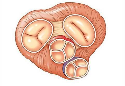 Аортальная недостаточность - причины, степени, симптомы, лечение, прогноз и профилактика