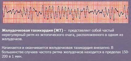 Частая желудочковая экстрасистолия: классификация, симптомы и дигностика нарушения ритма сердца