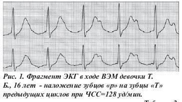 Атриовентрикулярная блокада 2 степени: симптомы, лечение, прогноз